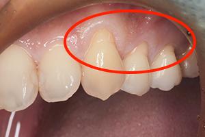 歯周形成外科2